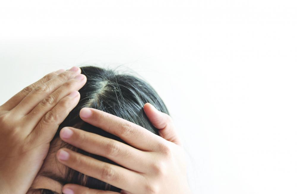 Để nhuộm tóc ở nhà an toàn, nên lựa loại thuốc một pha và tránh để thuốc nhuộm dính vào mắt