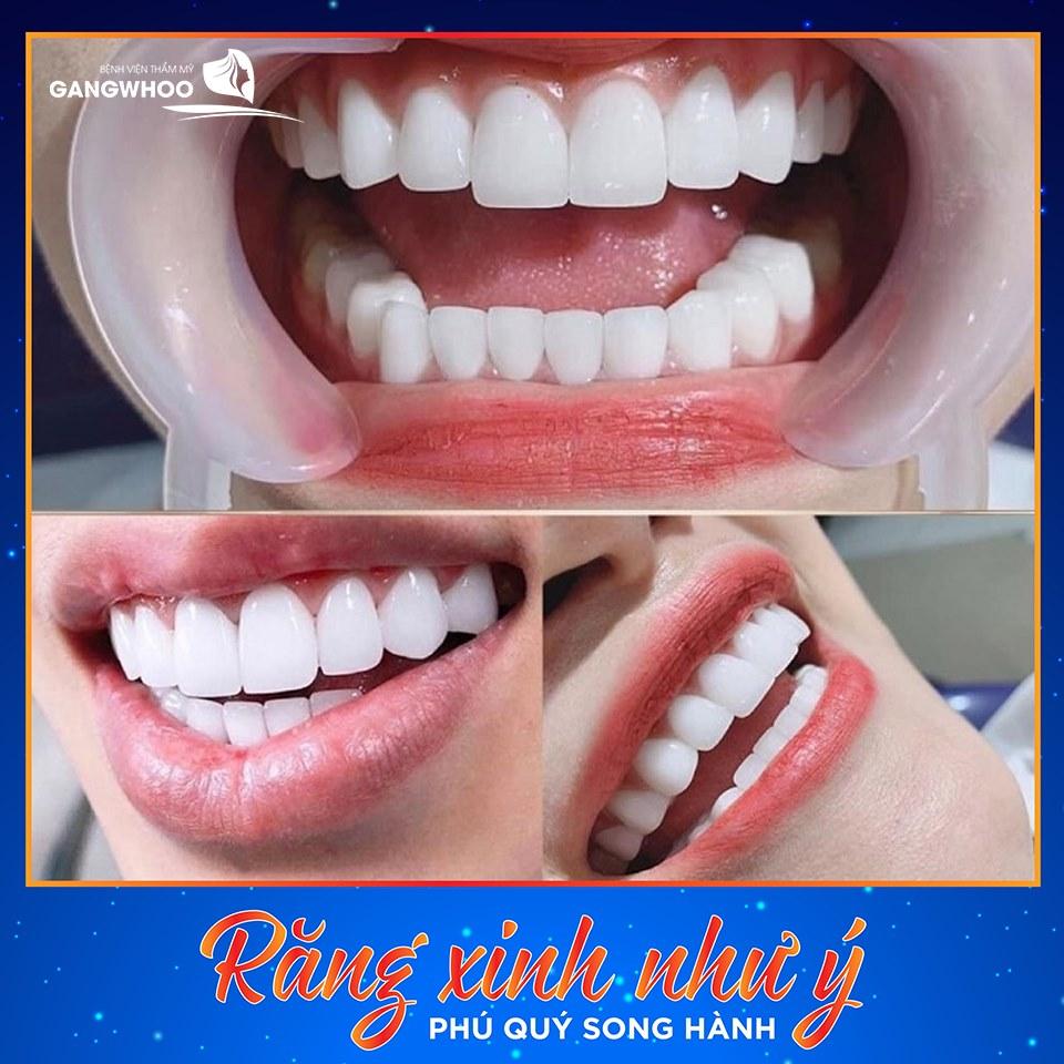 Răng trắng cười xinh - phú quý song hành
