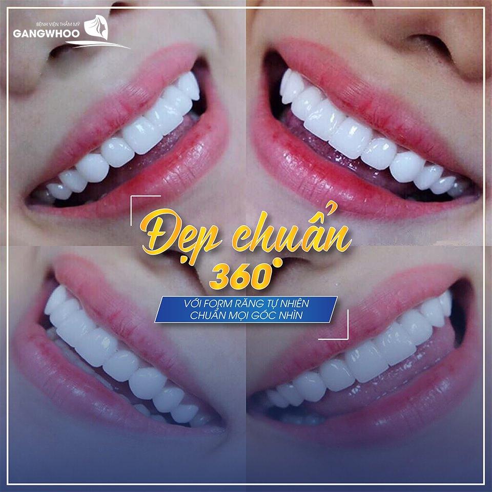 Dáng răng tự nhiên phương pháp implant mang lại đẹp chuẩn từng mi-li-mét