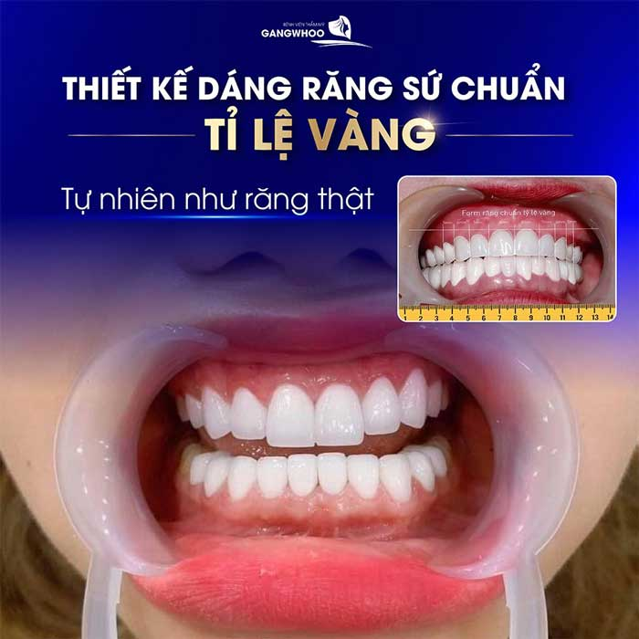 """Phương pháp trồng răng implant giúp khách hàng sở hữu răng chuẩn tỷ lệ """"vàng"""""""