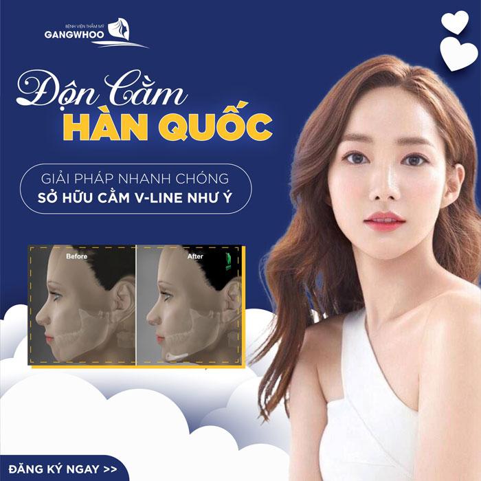 Công nghệ độn cằm V-line Korea Implant giúp bạn nhanh chóng sử hữu chiếc cằm thon gọn như ý