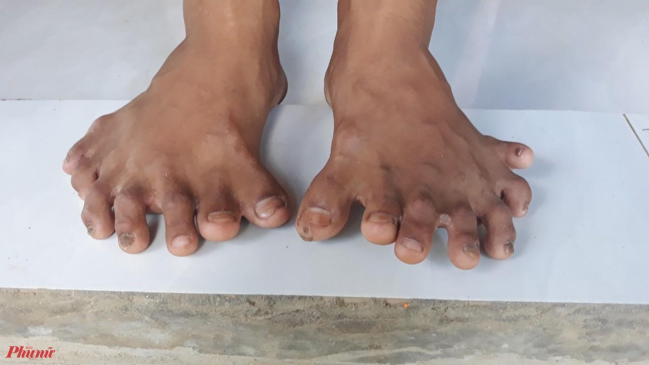 Mỗi bàn chân của Hoàng có 7 ngón
