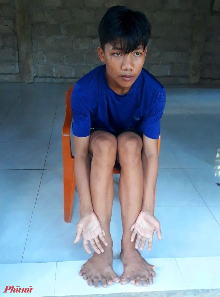 Từ lúc ra đời, Hoàng có đến đến 26 ngón tay, chân