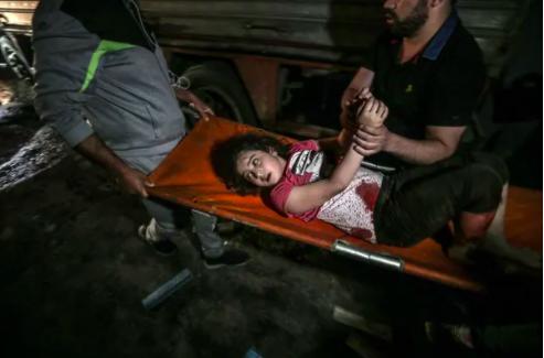 cô gái bị thương sau cuộc không kích của Israel vào thành phố Gaza hôm Chủ nhật. Ảnh: Mohammed Sabre / EPA