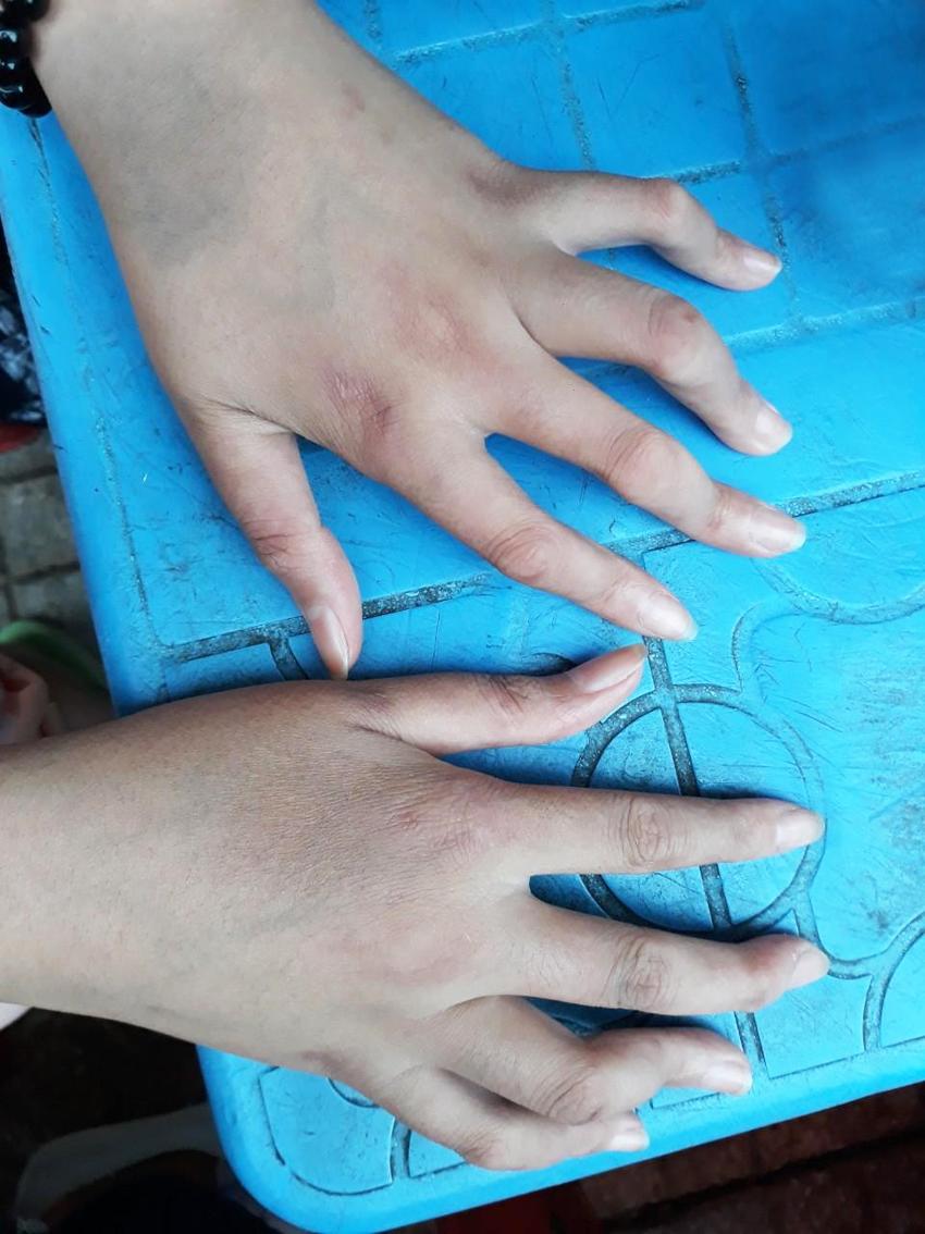 Những ngón tay của My cong lại vì căn bệnh viêm khớp thiếu niên