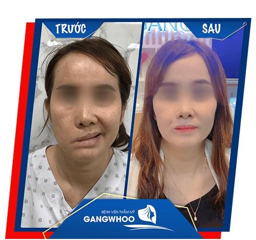 Hình ảnh khách hàng sau điều trị liệt mặt tại bệnh viện. Ảnh: BVTM Gangwhoo