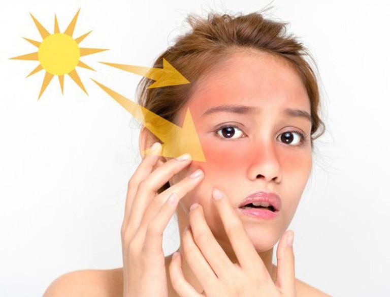 Không thoa kem chống nắng: Không bảo vệ da khỏi tác hại của tia UV bằng kem chống nắng là một trong những sai lầm lớn nhất khiến kích thước lỗ chân lông to hơn trên da của bạn. Hãy thoa kem chống nắng ngay cả khi bạn ngồi ở văn phòng.