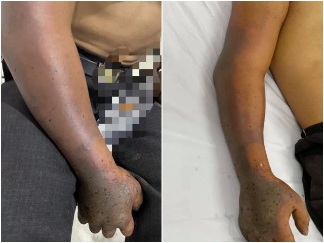 Hình ảnh cánh tay phải bệnh nhân bị hoại tử sau khi bị rắn cắn.