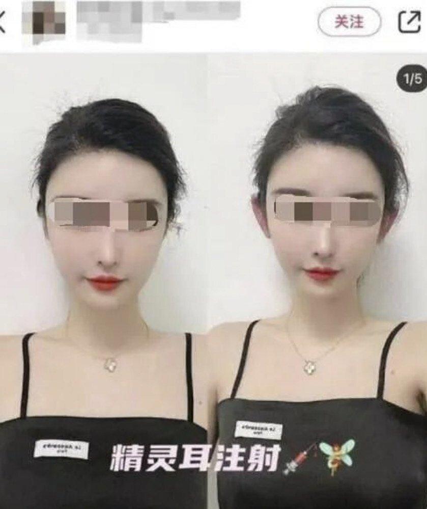 Một số bác sĩ cảnh báo rằng quy trình này đi kèm với rủi ro. Ảnh: Baidu