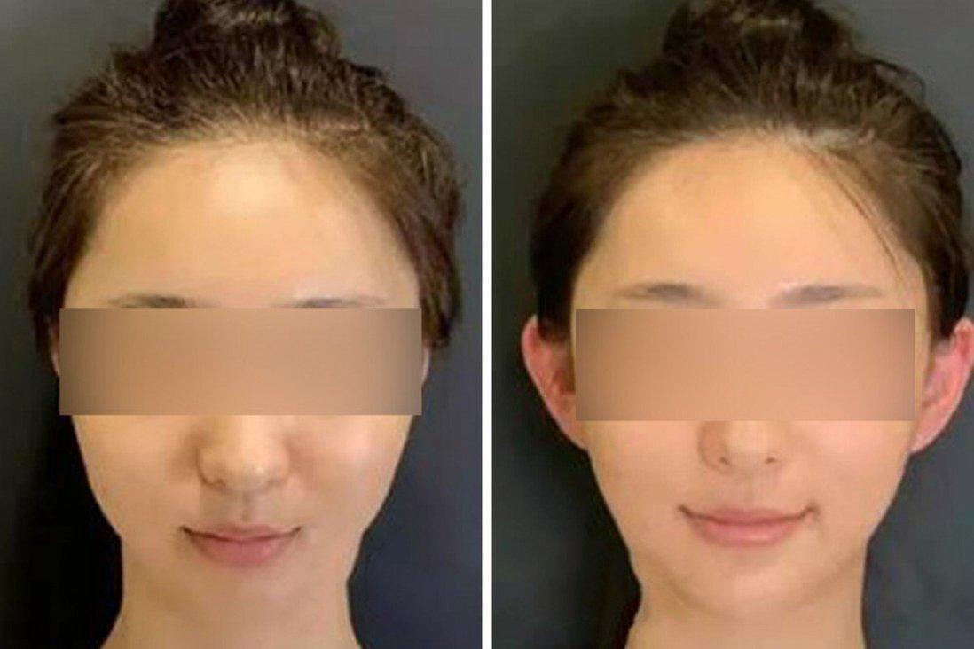 'Tai tinh' là một mốt mới trong giới trẻ Trung Quốc, những người hy vọng nó sẽ giúp khuôn mặt của họ trông thon gọn hơn. Ảnh: Ảnh minh họa