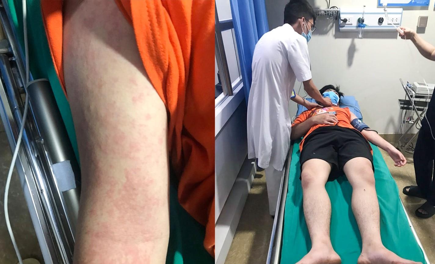 Bệnh nhân sốc phản vệ nặng sau khi ăn mối