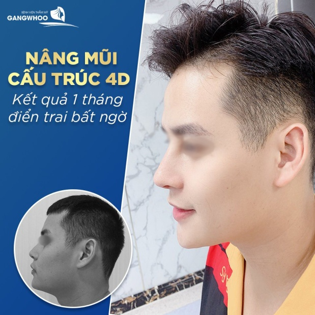 Nâng mũi sụn Nanoform giúp tương thích tối đa với cơ thể, tránh được các biến chứng. Ảnh: Gangwhoo