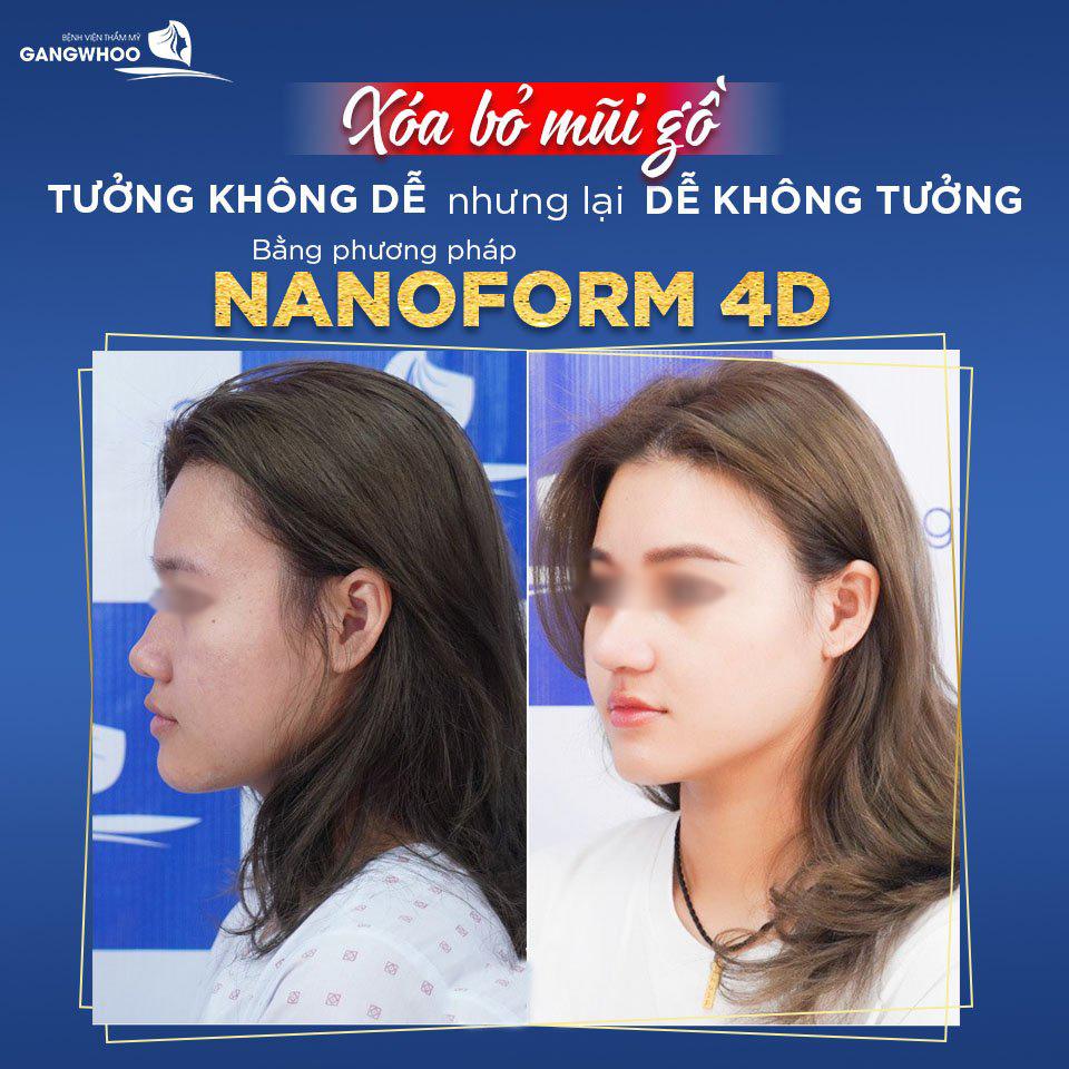 Nâng mũi (Nanoform 4D) cho chiếc mũi hoàn hảo theo đúng chuẩn tỷ lệ vàng. Ảnh: Gangwhoo