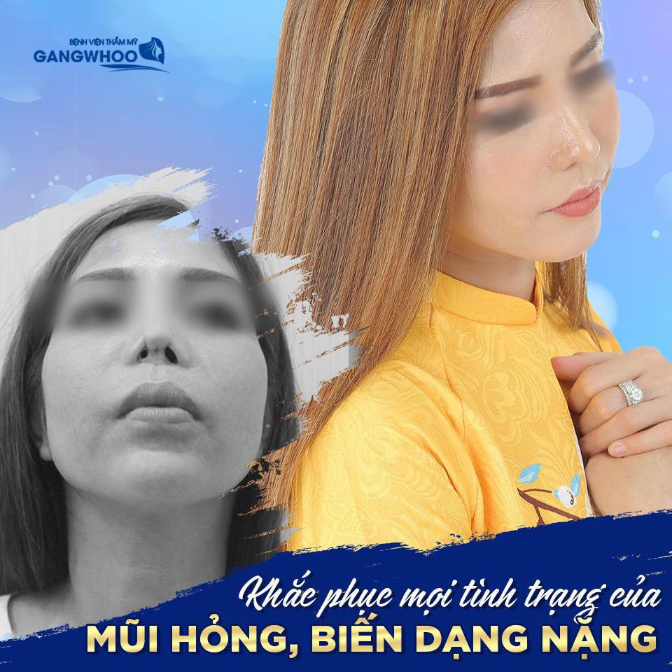 Mũi của khách hàng bị biến chứng, biến dạng nặng nề sau khi phẫu thuật nâng mũi bị hỏng - Ảnh: Gangwhoo