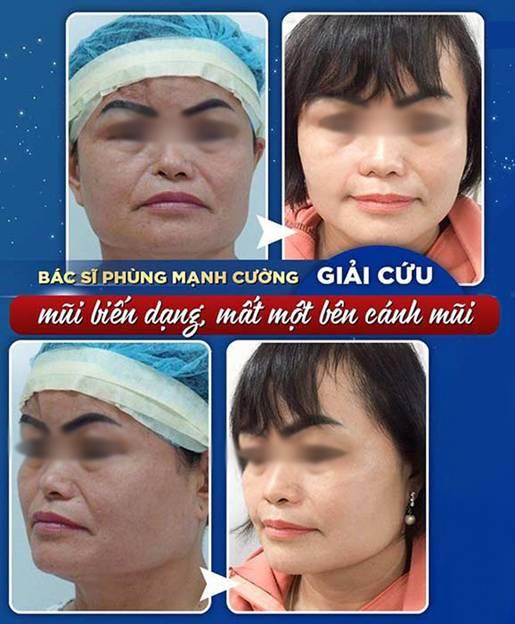 Bác sĩ Phùng Mạnh Cường là bác sĩ chuyên sửa mũi hỏng cho những khách hàng không may mắn - Ảnh: Gangwhoo