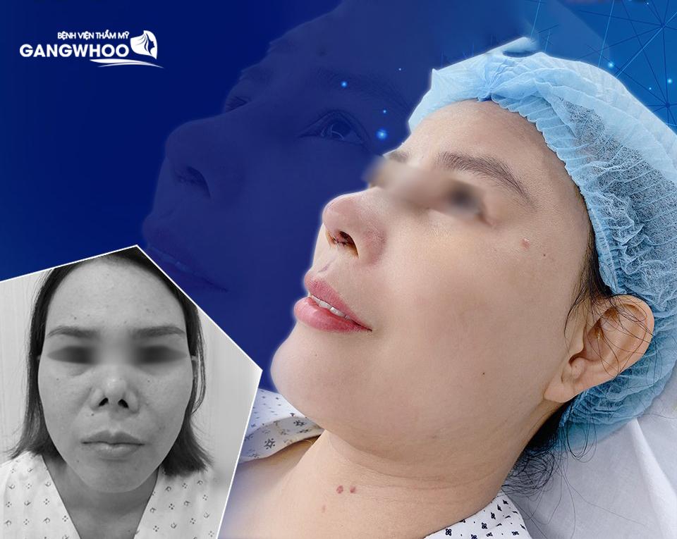 Mũi bị biến dạng, co rút được cải thiện rõ rệt sau khi sửa mũi hỏng - Ảnh: Gangwhoo