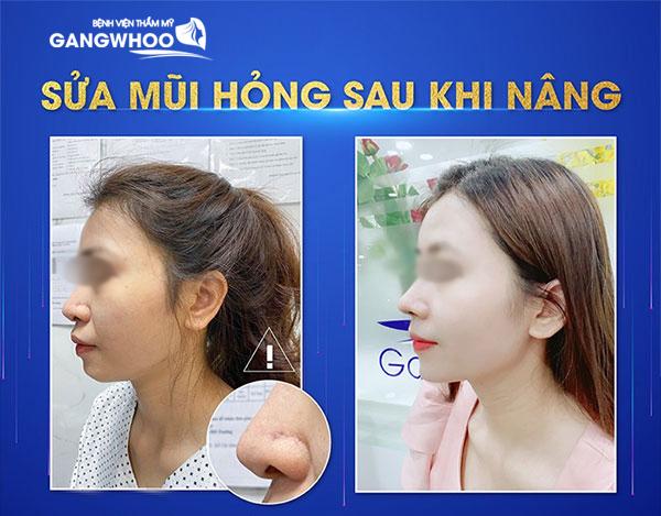 """Mũi bị bóng đỏ, lộ sống, được """"tân trang"""" dưới đôi bàn tay của bác sĩ Gangwhoo - Ảnh: Gangwhoo"""