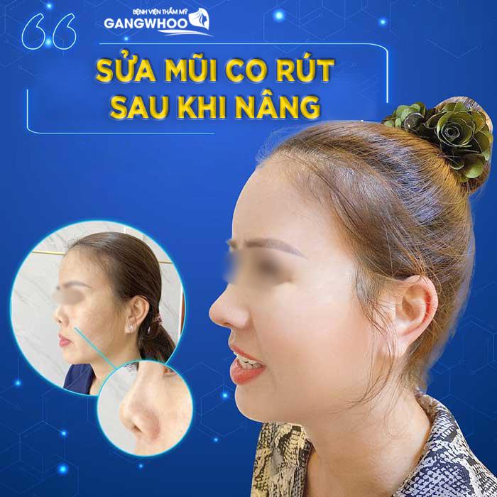 Mũi khách hàng bị co rút, và trình trạng mũi hiện tại của khách hàng - Ảnh: Gangwhoo