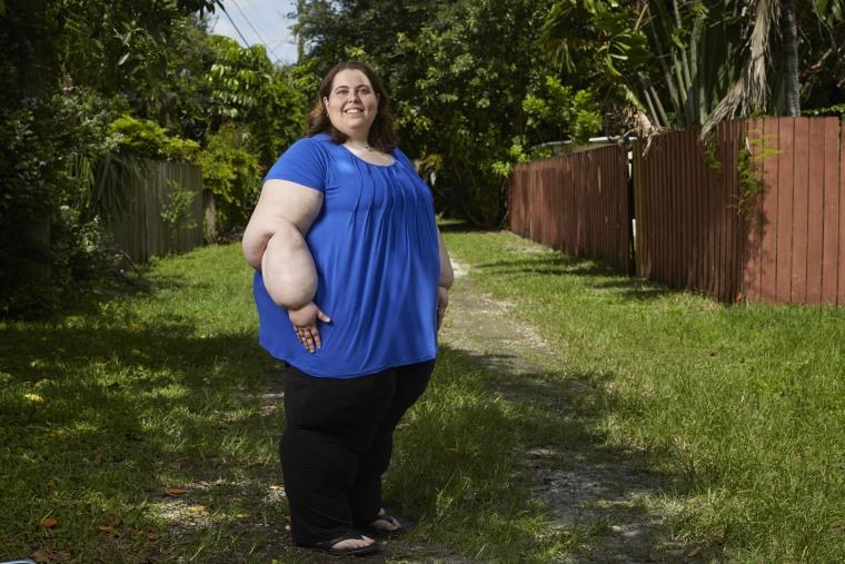 Sarah Bramblette bị béo phì do chứng phù bạch huyết - Ảnh: New York Times