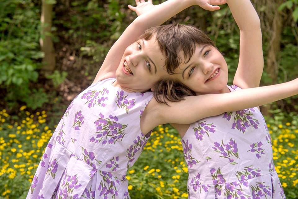 Các cặp song sinh dính liền thường gặp những vấn đề sức khỏe nghiêm trọng