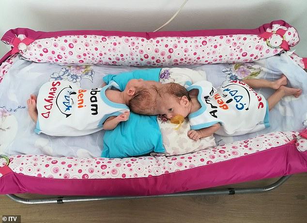Cặp song sinh dính liền 17 tháng tuổi Yigit và Derman - Ảnh: Daily Mail