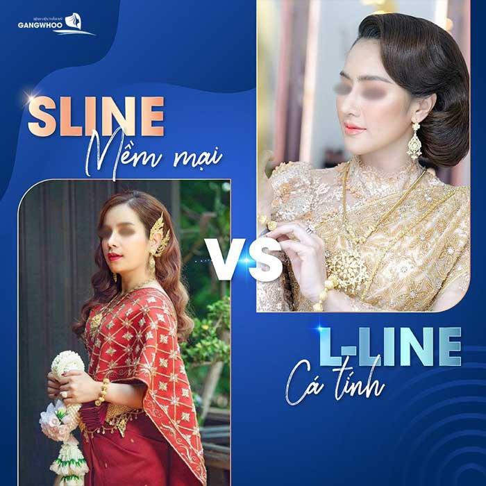 Sự khác nhau giữa nâng mũi Sline và nâng mũi Lline - Ảnh: Gangwhoo