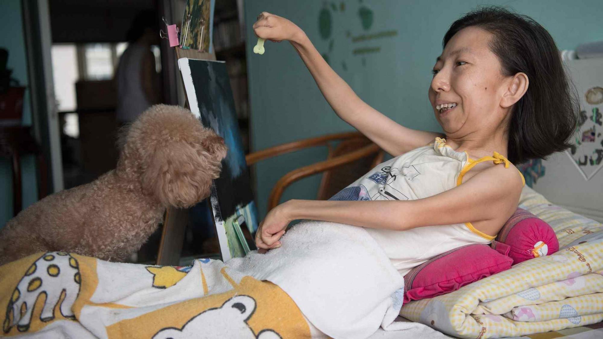 Cô Zhang Junli phải nằm liệt giường từ khi 8 tuổi vì căn bệnh viêm khớp dạng thấp - Ảnh: VCG