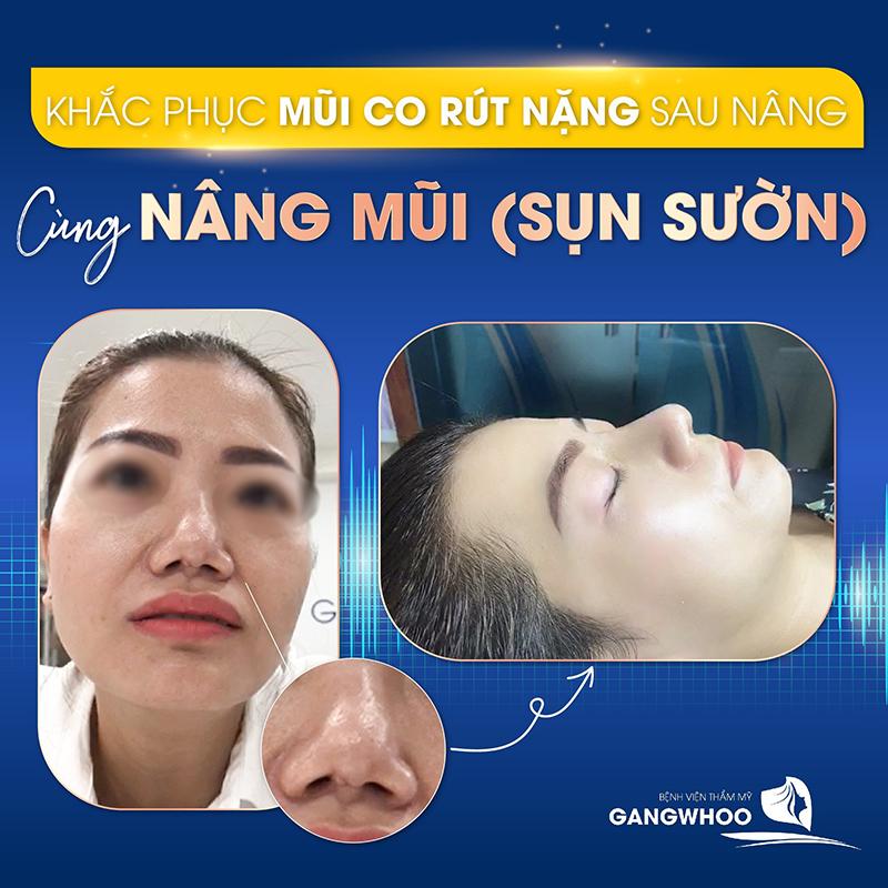 Xóa bỏ tự ti vì chiếc mũi hỏng sau 60 phút phẫu thuật - Ảnh: Gangwhoo