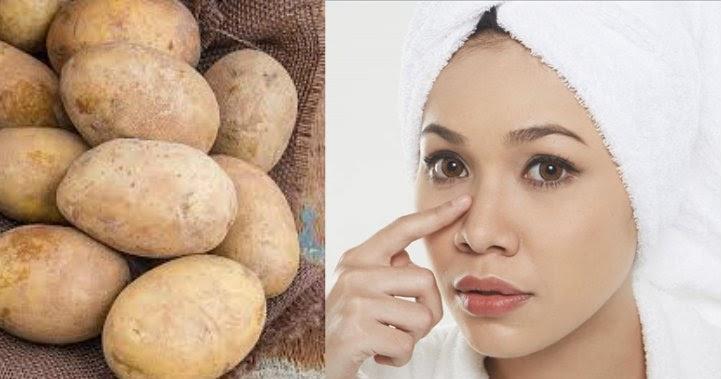 Tiến sĩ Muneeb Shah không khuyến khích dùng khoai tây để laoij bỏ mụn nhọt.