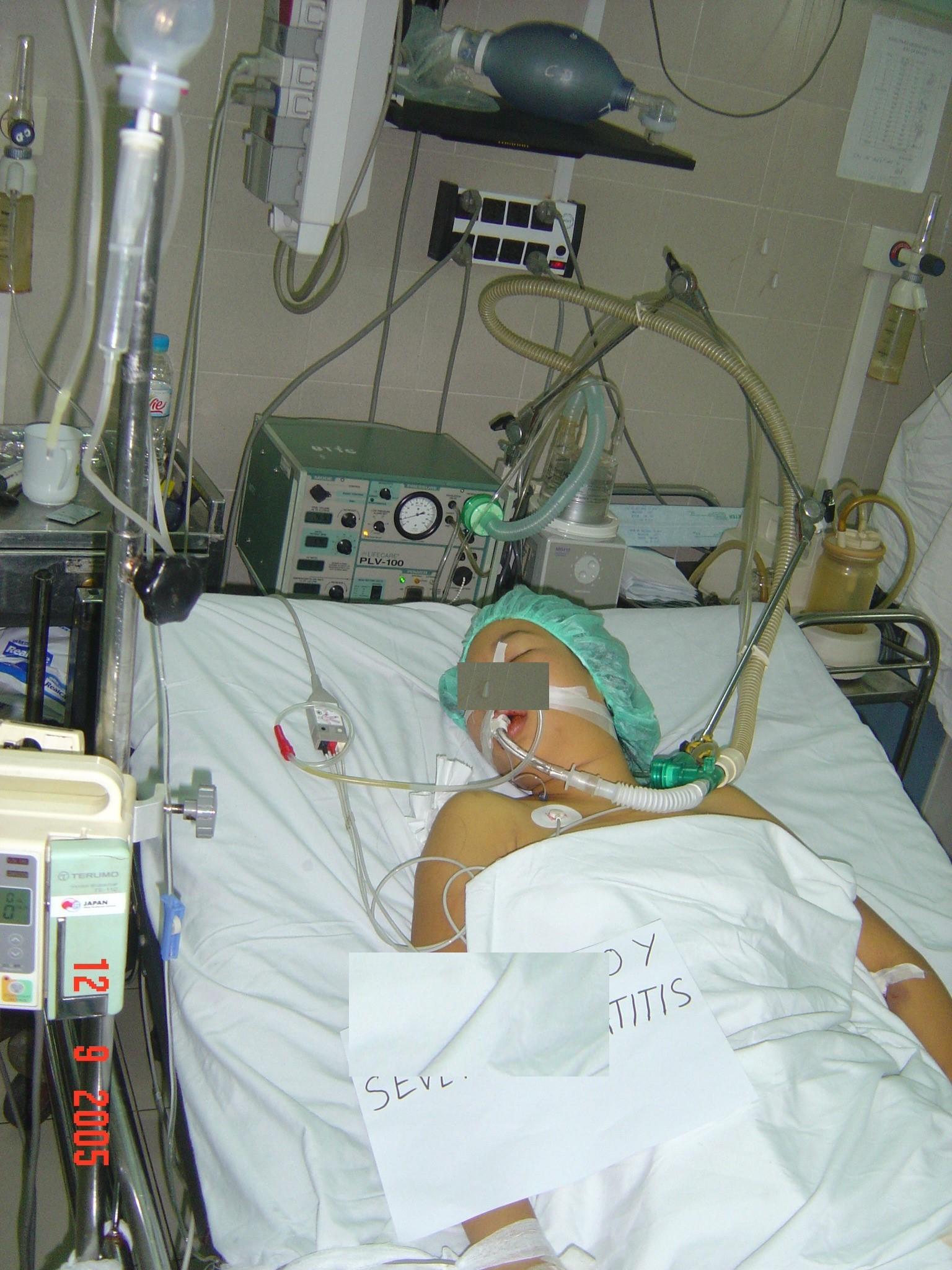 Một bệnh nhân ngộ độc paracetamol dẫn tới nguy kịch tại Bệnh viện Bạch Mai