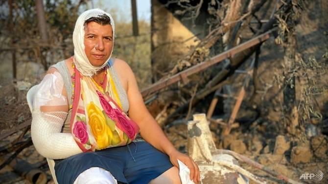 Hơn 330 người đã được điều trị y tế kể từ khi đám cháy ở Thổ Nhĩ Kỳ bùng phát.