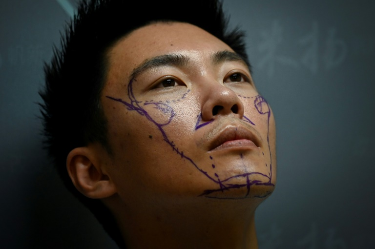 Lo lắng ngoại hình của mình sẽ làm mất đi cơ hội trong xã hội cạnh tranh của Trung Quốc, Xia Shurong quyết định nhờ đến dao kéo của bác sĩ phẫu thuật để chỉnh hình lại mũi của mình
