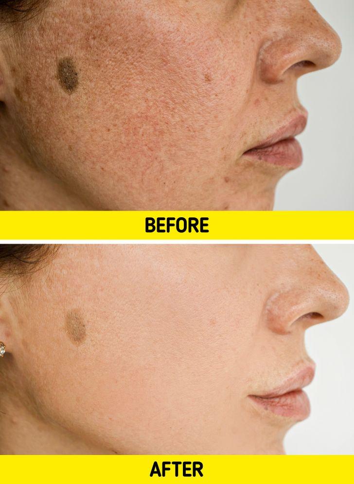 Làm giảm sắc tố da: Mặc dù chứng tăng sắc tố da thường vô hại, nhưng tình trạng da phổ biến này có thể gây khó chịu và xấu hổ đối với một số người. Nếu không được điều trị, các đốm đen cuối cùng có thể dẫn đến màu da không đồng đều, khiến khuôn mặt bạn trông loang lổ. Nước vo gạo đã được chứng minh là có khả năng tăng cường sản xuất melanin và có thể làm giảm chứng tăng sắc tố da một cách hiệu quả .