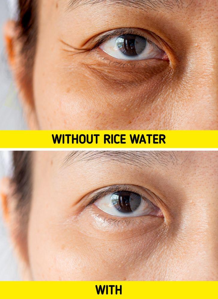 Sử dụng nước gạo làm chất tẩy rửa mặt có thể giúp bạn ngăn ngừa nếp nhăn. Nước gạo lên men tăng cường sản xuất collagen trong da của bạn và giúp da căng mọng và trẻ trung lâu hơn. Nước vo gạo cũng rất giàu  chất chống oxy hóa , giúp nó trở thành vũ khí tự nhiên và mạnh mẽ chống lại các nếp nhăn sớm.