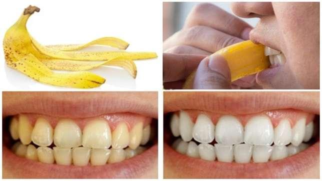 Vỏ chuối có chứa các chất làm tan mảng bám răng và giúp duy trì màu sắc hoàn hảo của răng. Chà mặt trong của vỏ vào răng của bạn từ cả hai bên và để yên trong 5-7 phút. Sau đó đánh răng và súc miệng như bình thường.
