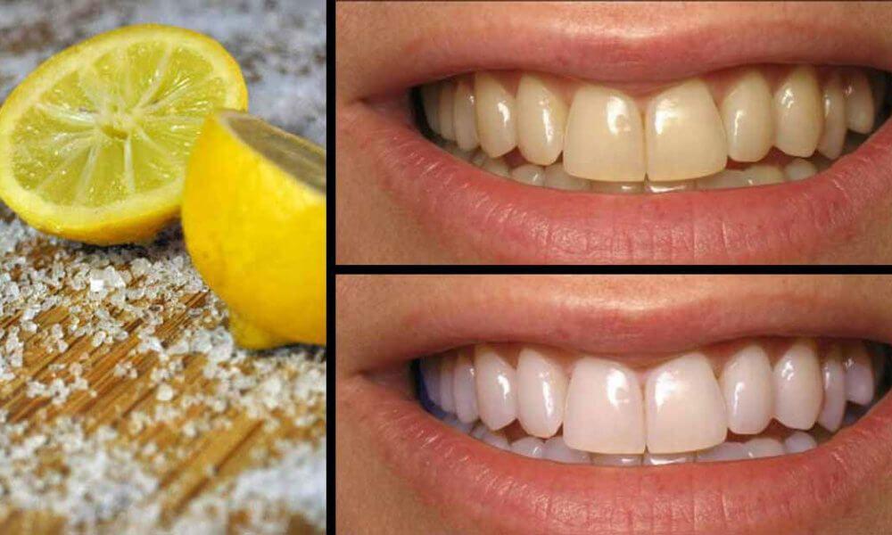 Lấy 3 phần nước cốt chanh và 1 phần muối tinh trộn đều với nhau rồi súc miệng thật sạch sau khi đánh răng sẽ giúp bạn có hàm răng trắng sáng. Để bảo vệ men răng, bạn nên áp dụng phương pháp này 1 lần/tuần và nên thực hiện trước khi đi ngủ. Nếu áp dụng phương pháp này vào buổi sáng, bạn sẽ bị ê răng, gây khó chịu trong ăn uống cả ngày.