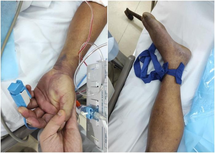 Bệnh nhân sốt cao, nổi vân tím toàn thân, có vết xước ở chân phải. Ảnh: Bệnh viện cung cấp
