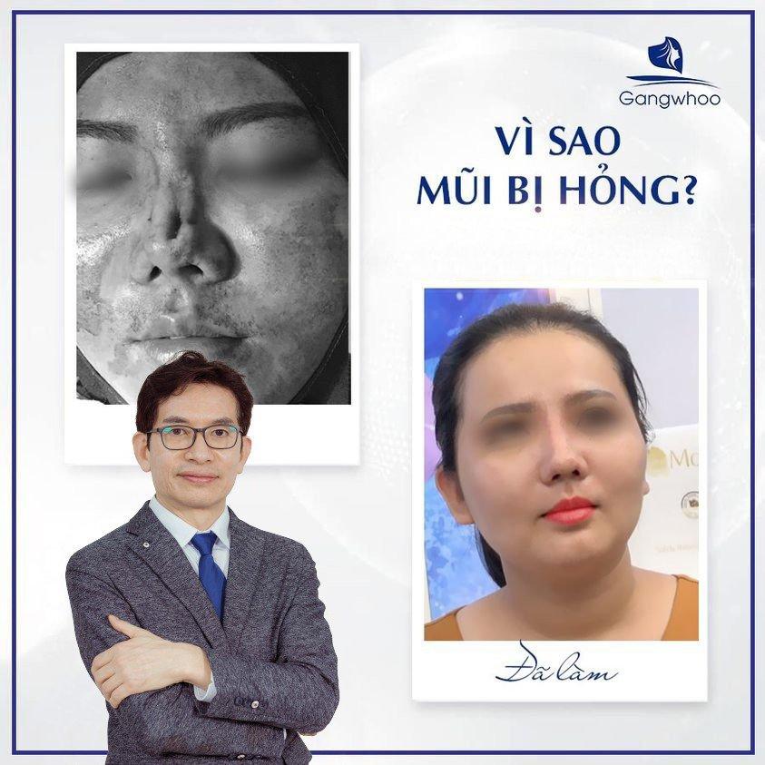 Giáo sư, bác sĩ Park Sung Yong - Cố vấn chuyên môn Bệnh viện thẩm mỹ Gangwhoo - Ảnh: Gangwhoo