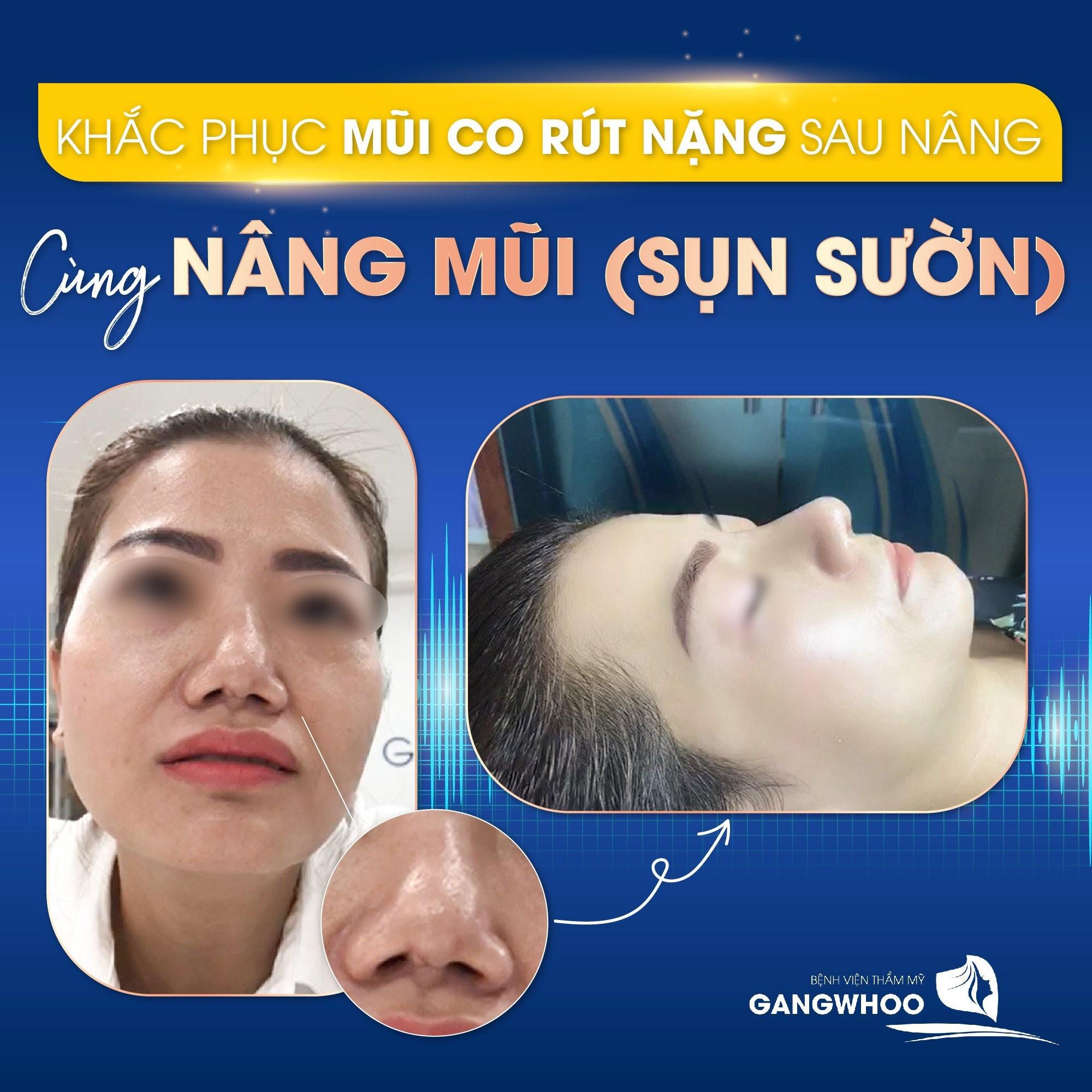 Khắc phục mũi co rút nặng sau nâng - Ảnh: Gangwhoo