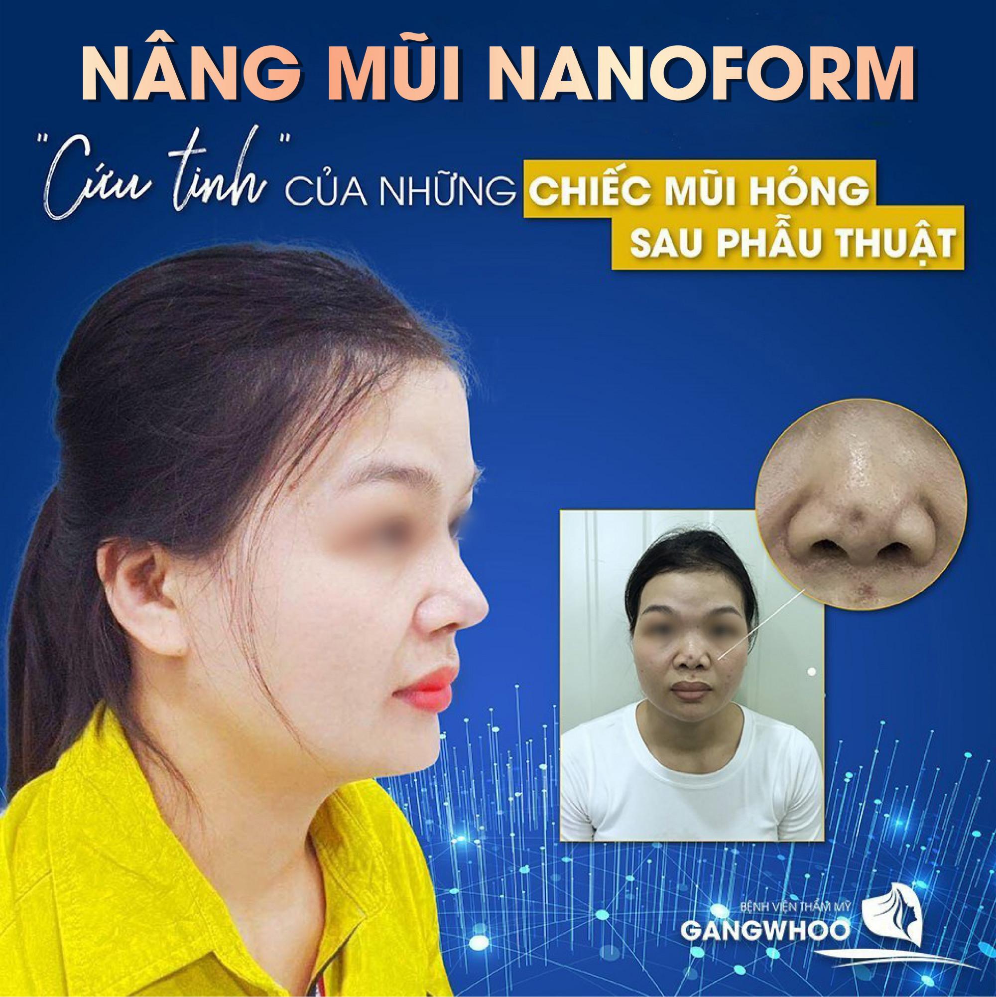 Kỹ thuật nâng mũi Nanoform là sự kết hợp hoàn hảo giữa sụn nano - sụn tự thân và phẫu thuật nội soi - Ảnh: Gangwhoo