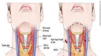 Thấy những biểu hiện này bạn cần đi khám ngay để phát hiện sớm ung thư vòm họng