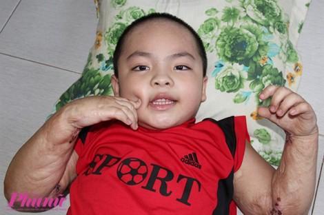 Hành trình nghị lực của cậu bé 5 tuổi bị phỏng nặng khi ngã vào chảo nước sôi