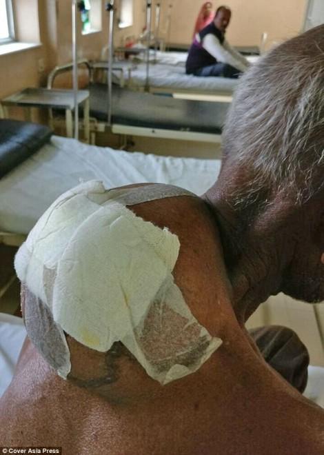 Người đàn ông gánh khối u khổng lồ sau gáy suốt 6 năm