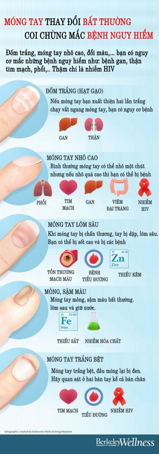 Móng tay thay đổi bất thường coi chừng mắc bệnh nguy hiểm