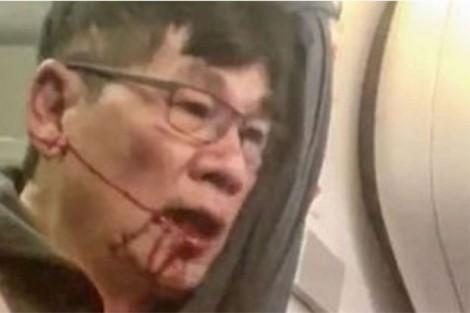 120 triệu dân TQ kể tội hãng hàng không lôi khách Việt khỏi máy bay