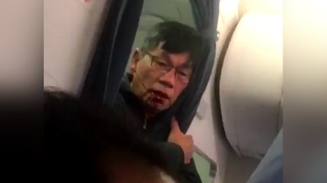 Loi hanh khach goc Viet tho bao, United Airlines mat 800 trieu USD