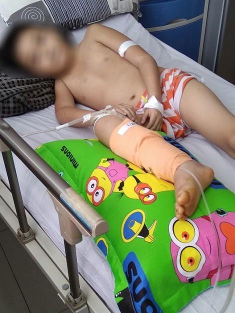 Mủ đầy trong xương, sau khi bé trai được bó thuốc trị bong gân