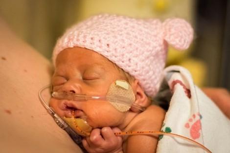 Cha mẹ có biết: làn da bé sinh non cần được nâng niu?