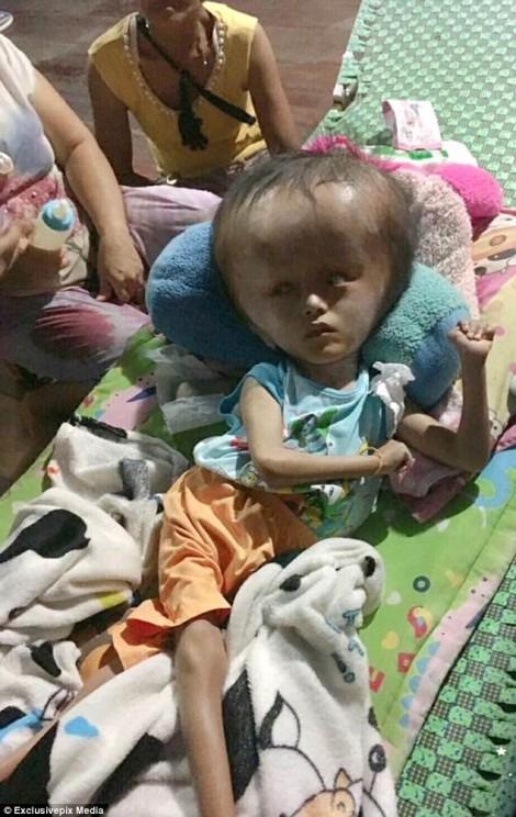 Rơi nước mắt với cậu bé mắc chứng bệnh khiến đầu ngày càng to bị cha mẹ bỏ rơi