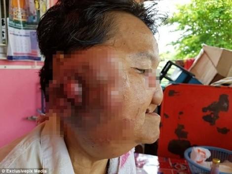 Một phụ nữ có nguy cơ bị mù vì khối u khổng lồ trên mặt